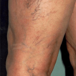Признаки и методы лечения варикозного расширения вен